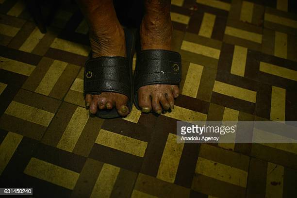 Feet of a leprosy patient are seen at Curupaiti colony hospital in Jacarepagua district of Rio de Janeiro Brazil on May 18 2016 Hospital Colonia was...