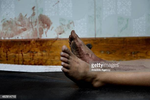 Feet of an injured Palestinian is seen at Beit Lahia's Kamal Adwan hospital in Gaza on July 30, 2014. The death toll from the Israeli shelling of a...