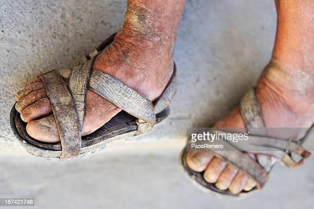足の悪い - サンダル ストックフォトと画像
