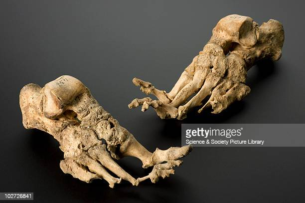 Feet showing effects of leprosy c1350 Feet of an skeleton of a mature female showing effects of leprosy from a medieval Danish leprosy cemetary...
