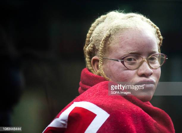 A female albino migrant looks out inside a bus after her arrival at the Port of Malaga Spanish Maritime Rescue service rescued a total of 183...