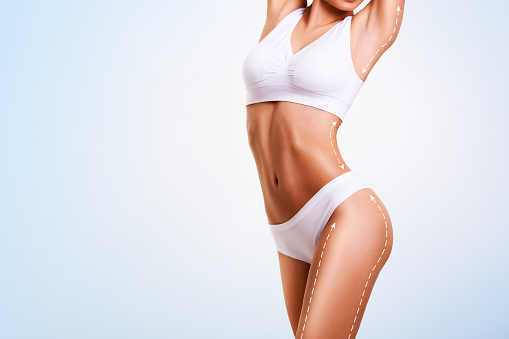 Female body, cosmetic surgery and skin liposuction. 988581210