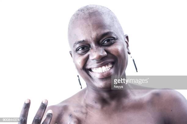 sobreviviente del cáncer femenino con cabeza rapada - cancer de piel fotografías e imágenes de stock