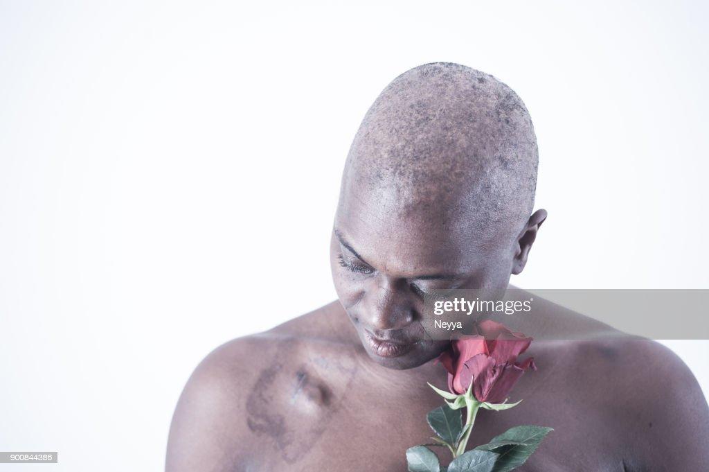 cancer survivor bidanya baraza - 1024×681