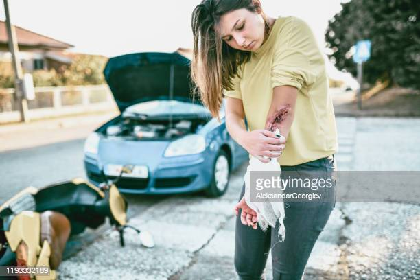 female cleaning her own wound after accident - motorcycle accident stock pictures, royalty-free photos & images
