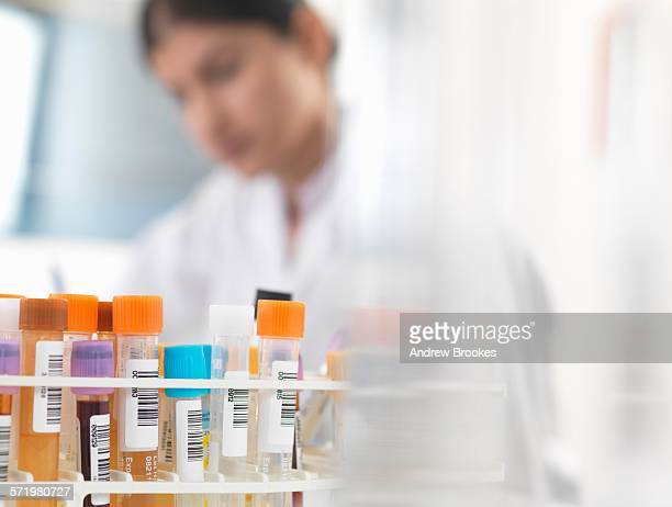 female doctor preparing blood and urine samples at desk - urine sample stock photos and pictures