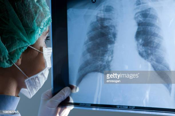 Female doctor wearing a mask looking at X-ray