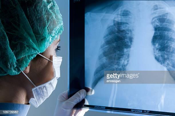 女医マスクをお望みのお客様は、X 線