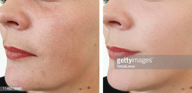 female face wrinkles before after correction