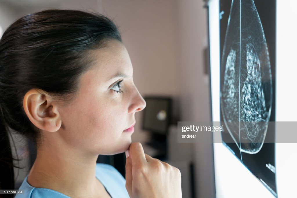 Female gynecologist looking at a mammogram very concerned : Stock Photo