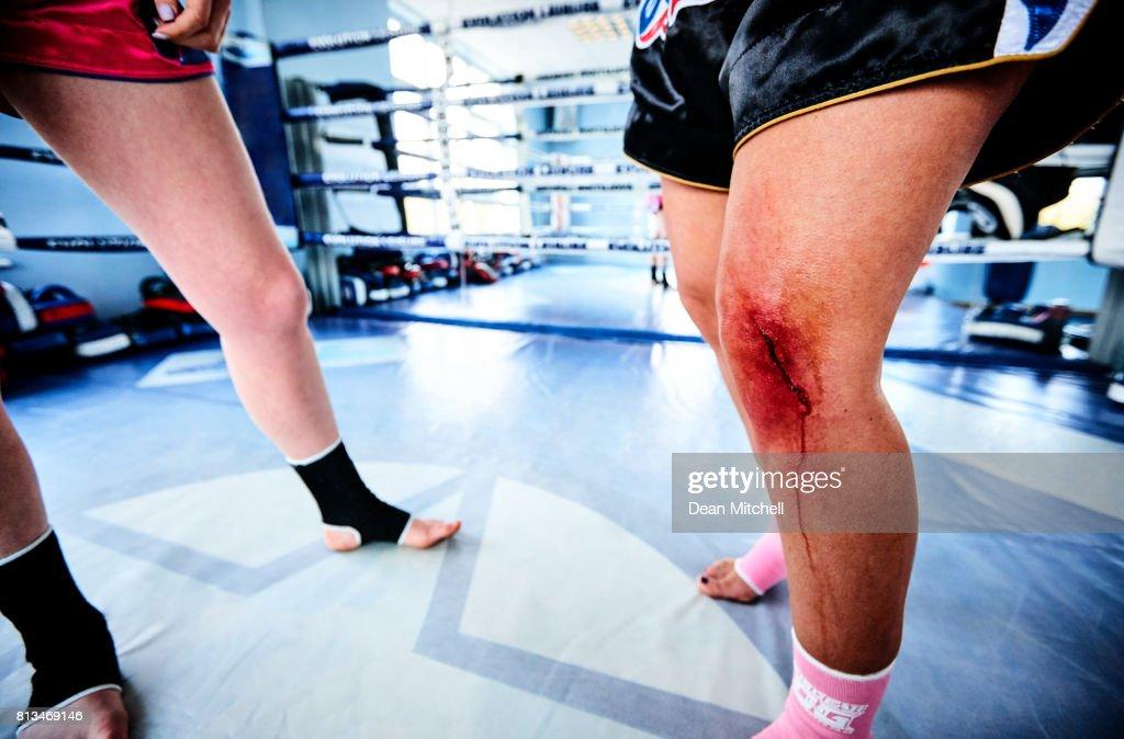 small injury since kicking - 1024×674