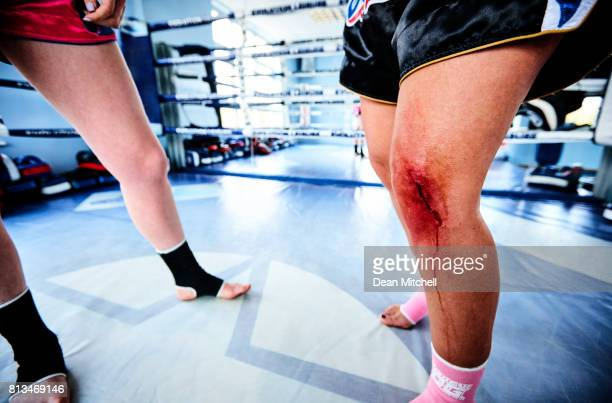female kick boxer with knee injury - bloody leg stock photos and pictures