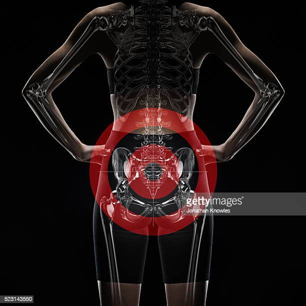 female mid section with layer of x-ray scan, hands on hips, red circle mark on pelvis - pelvis stock pictures, royalty-free photos & images
