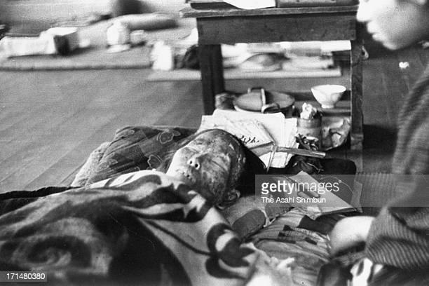 Female Nagasaki atomic bomb victim receives a treatment at Shin Kozen Elementary School in August 1945 in Nagasaki, Japan. The world's first atomic...
