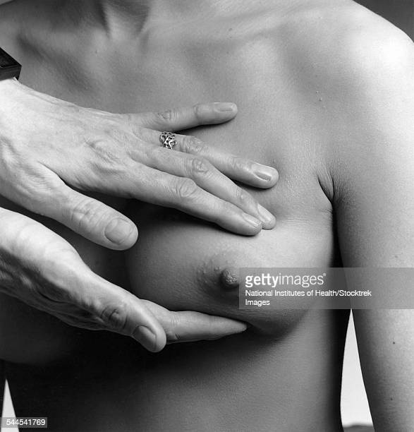 A female nude from the waist up with a doctors hands conducting a clinical breast examination.