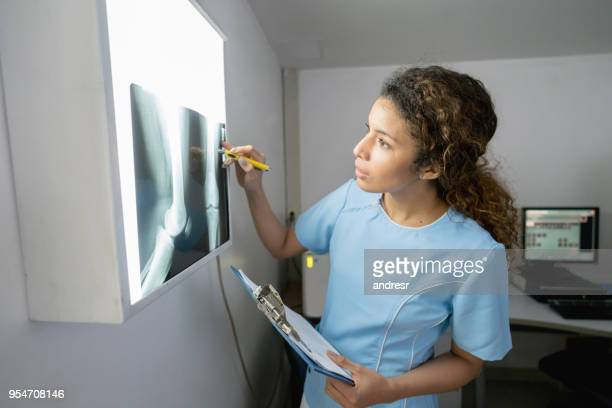 female orthopedist looking at an xray very serious - x ray image stock pictures, royalty-free photos & images