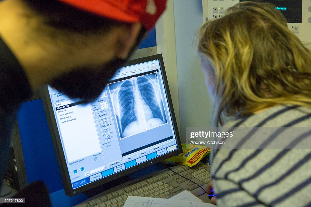 UK - Public Health - Tuberculosis (TB) : News Photo