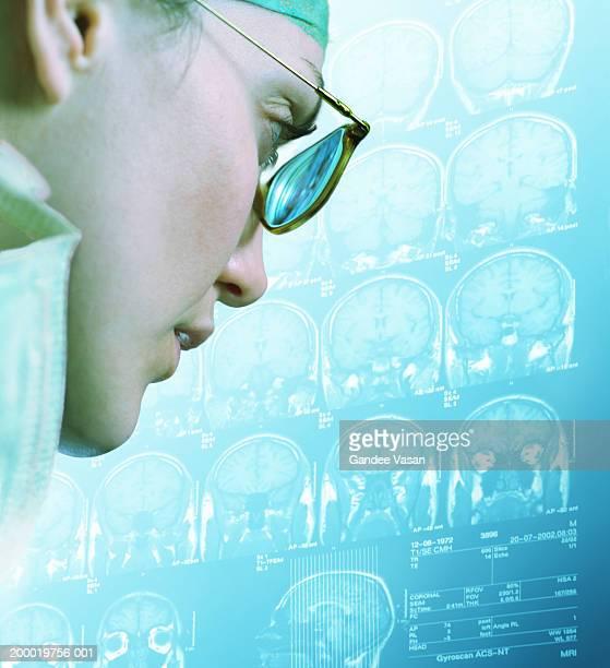 Female surgeon examing MRI scans, close-up