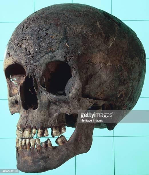 Female syphilitic skull with multiple erosive lesions