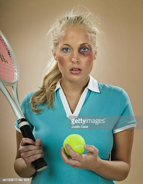 Female tennis player with black eye holding tennis racket and ball, portrait, studio shot