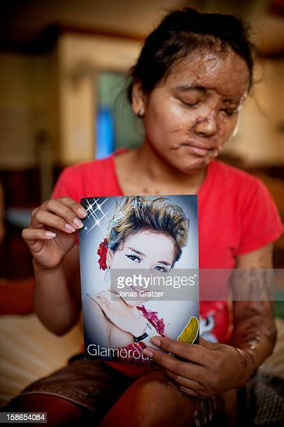 A female victim of an acid attack Her boyfriend doused acid on her out of jealousy In her hand it is a picture of her when she was a singer before...