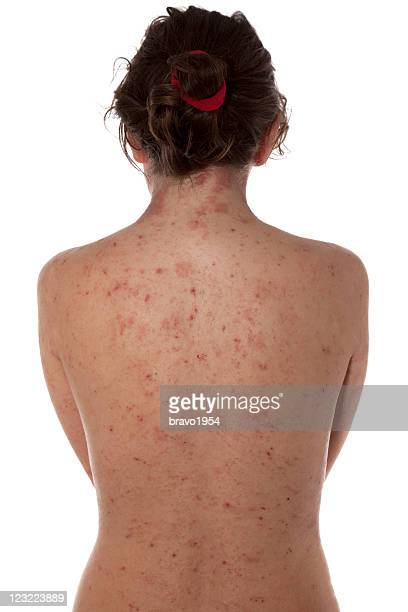 a female with atopic dermatitis on her bare back - eczema stock pictures, royalty-free photos & images