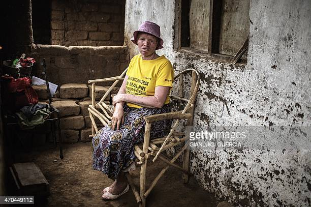Femia Tchulani a 42yearold Malawian albino woman sits oustide her house on April 18 2015 in Blantyre Six albinos have been killed in the poor...