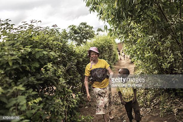 Femia Tchulani a 42yearold Malawian albino woman walks with her son on April 18 2015 in Blantyre Six albinos have been killed in the poor southern...