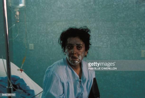 Femme kurde ayant été gazée en mars 1988 dans le village de Halabja, Irak.