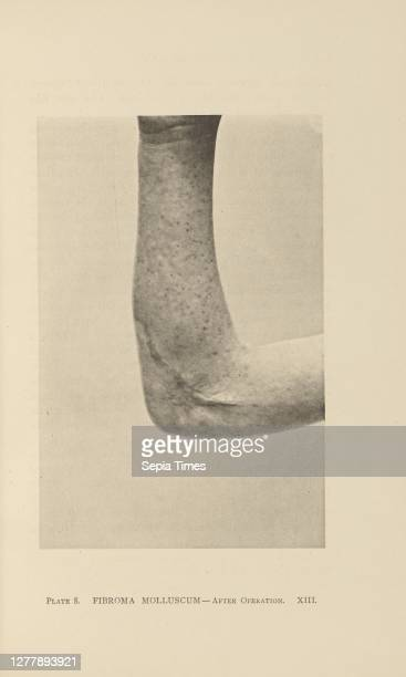 Fibroma Molluscum - After Operation; Charles B. Brigham ; Cambridge, Massachusetts, United States; 1876; Heliotype; 14.4 × 9.4 cm .