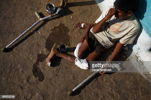Fifteen year old Sachin Kumar suns himself outside his home in a slum near the site of the deserted Union Carbide factory on November 30 2009 in...