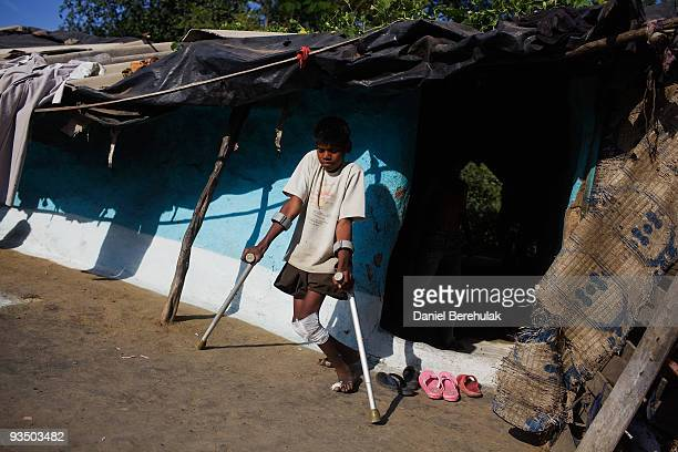 Fifteen year old Sachin Kumar walks with the assistance of crutches in a slum near the site of the deserted Union Carbide factory on November 30 2009...