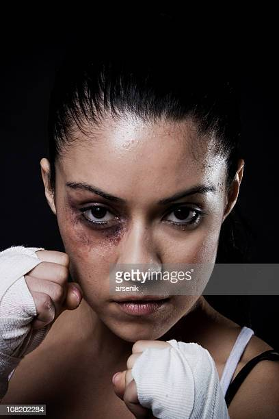 fighter - black eye stock pictures, royalty-free photos & images