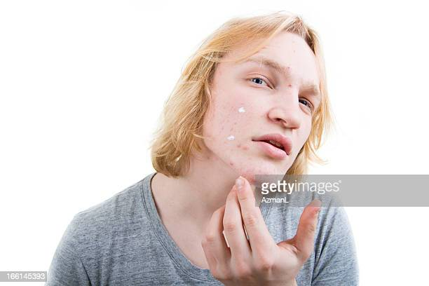 Fighting pimples