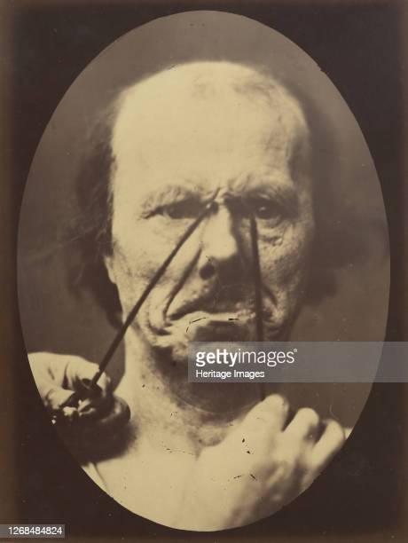 Aggression wickedness 185456 printed 1862 Artist Duchenne de Boulogne Adrien Alban Tournachon