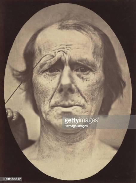 Suffering 185456 printed 1862 Artist Duchenne de Boulogne Adrien Alban Tournachon
