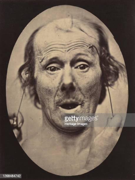 Surprise 185456 printed 1862 Artist Duchenne de Boulogne Adrien Alban Tournachon