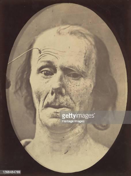 A study of m frontalis in maximum contraction 185456 printed 1862 Artist Duchenne de Boulogne Adrien Alban Tournachon