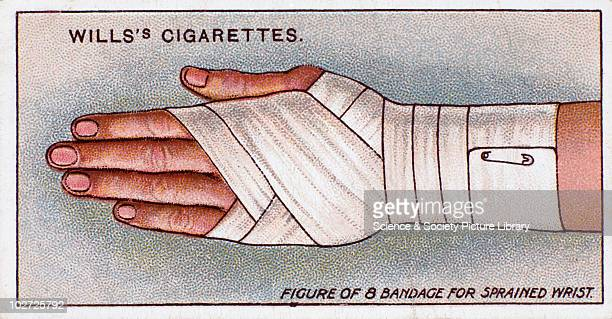 'Figure of 8 bandage for sprained wrist' Wills' cigarette card 1913 One of a series of 50 'First Aid' cigarette cards issued by WD HO Wills The image...