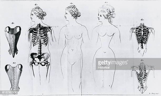 Figures illustrating the difference between a natural waist and a constricted waist deformed through the use of corsets from a published essay by...