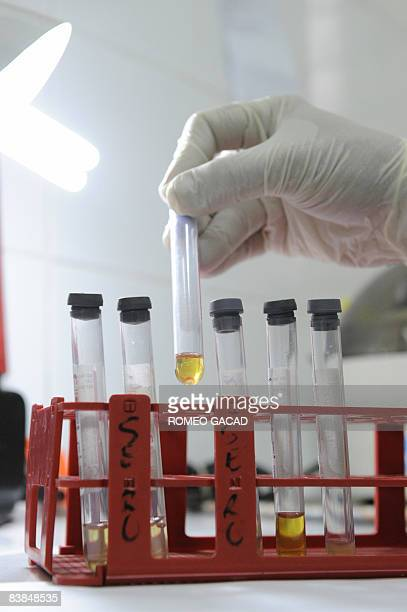 A Filipina medical technologist holds blood serum samples from clients for HIV screening test at the social hygiene clinic of the Manila Health...