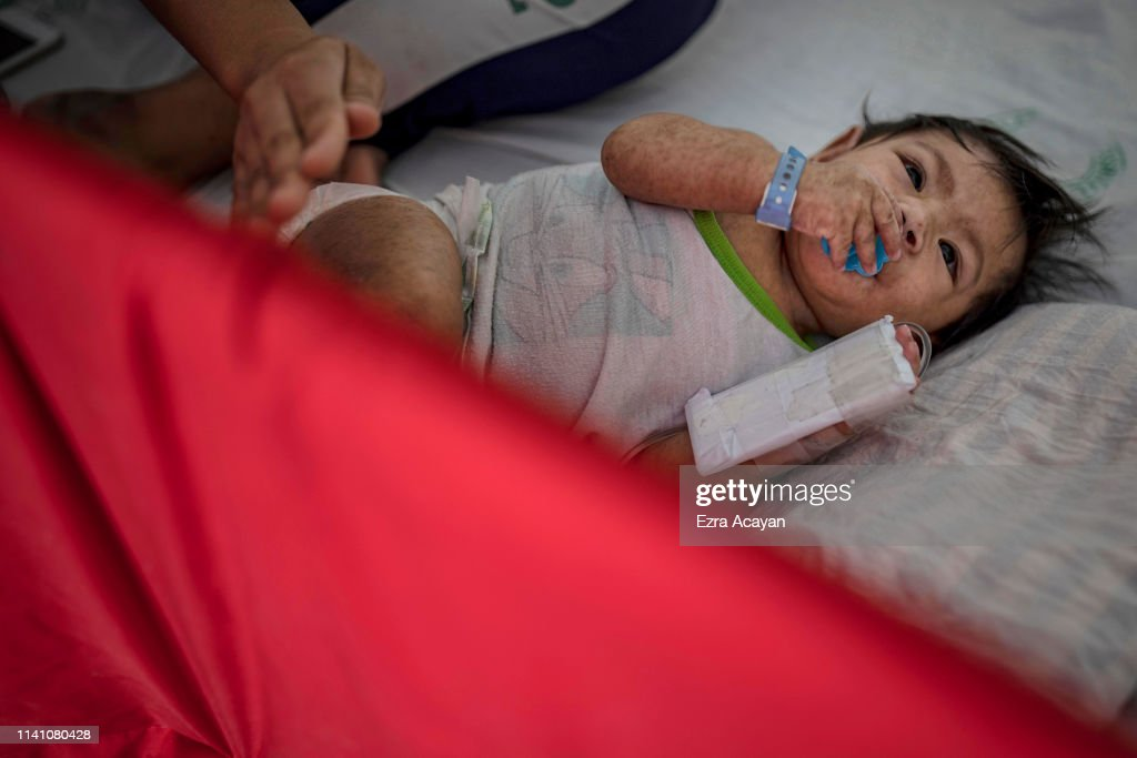 Measles Outbreak In The Philippines : News Photo