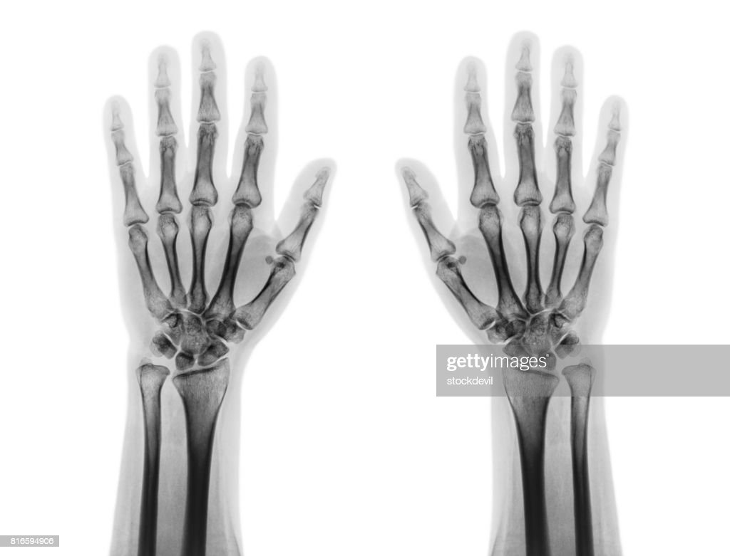 Film x-ray of both normal human hands . front view : Stock Photo