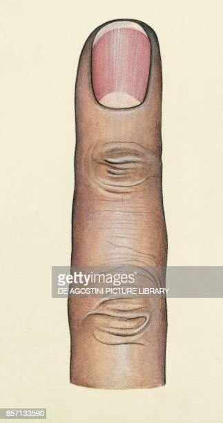 Finger phalanx nail body drawing