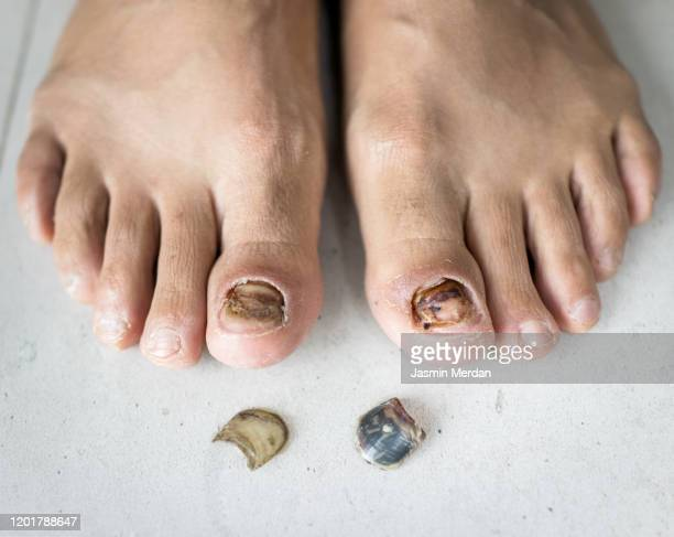 finger toe injured to lose nail - images of ugly feet stock pictures, royalty-free photos & images