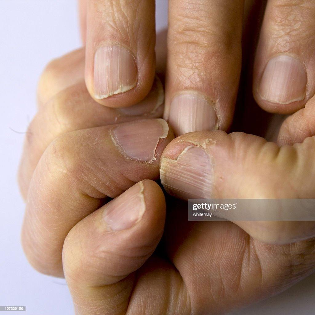 Fingernail disaster zone : Stock Photo