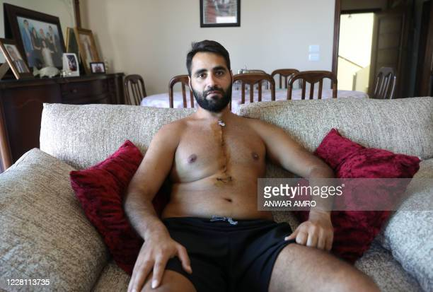 Firas Hamdan a 33yearold Lebanese lawyer displays his scar after he had surgery on his heart following an injury with a lead pellet fired by security...