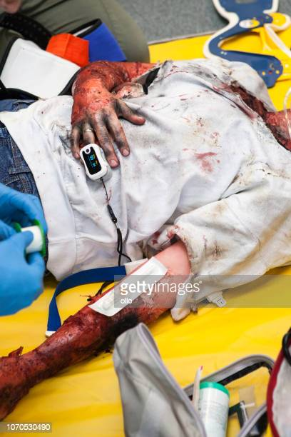 first aid paramedic training - emergency treatment - burn injury stock photos and pictures