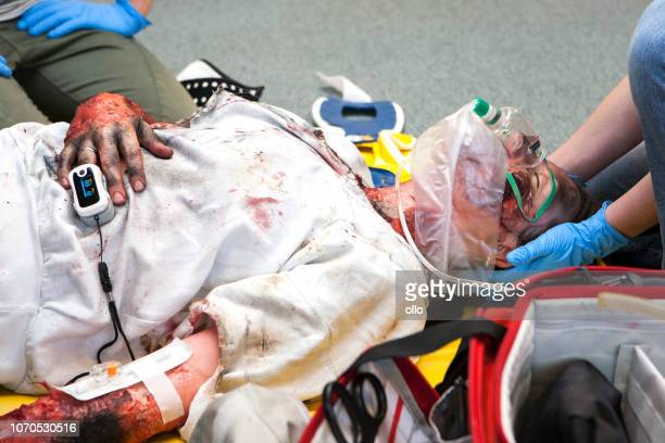 first aid paramedic training - emergency treatment - burns victims stock pictures, royalty-free photos & images