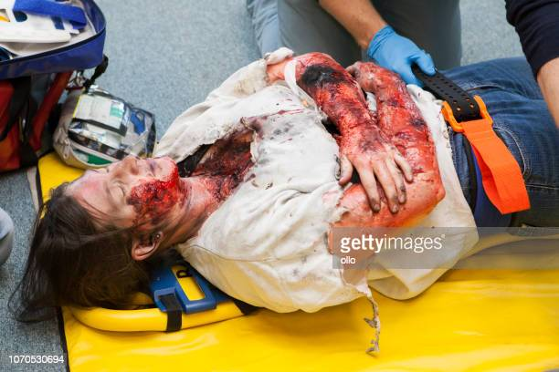 first aid paramedic training - fixating a patient - burns victims stock pictures, royalty-free photos & images